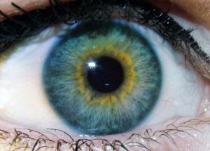 heterochromia-e1505317312747.jpg